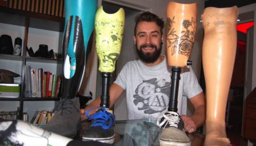 Simon propose des motifs variés pour orner les prothèses. //©A.S. Hourdeaux/U-Exist