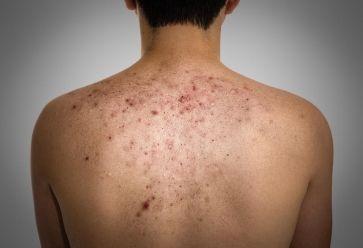 Visage, décolleté, bras, dos… acnée, comment s'en débarrasser // © Fotolia //©