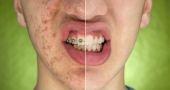 Les vrais trucs pour dégager l'acné